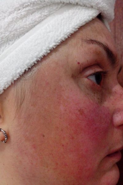 sla-latex-alergia
