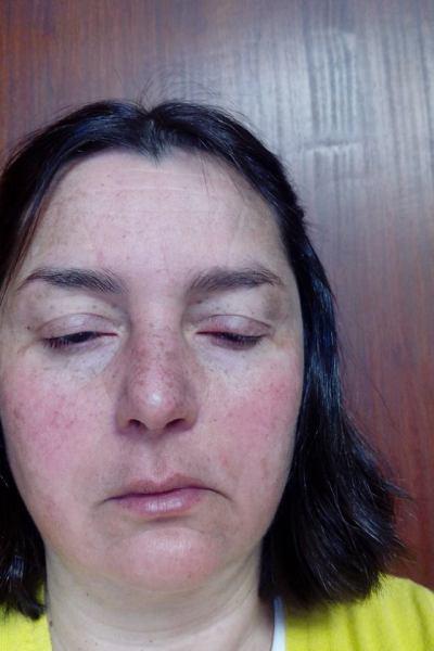sla-latex-alergia1