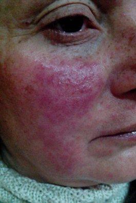 sla-latex-alergia3